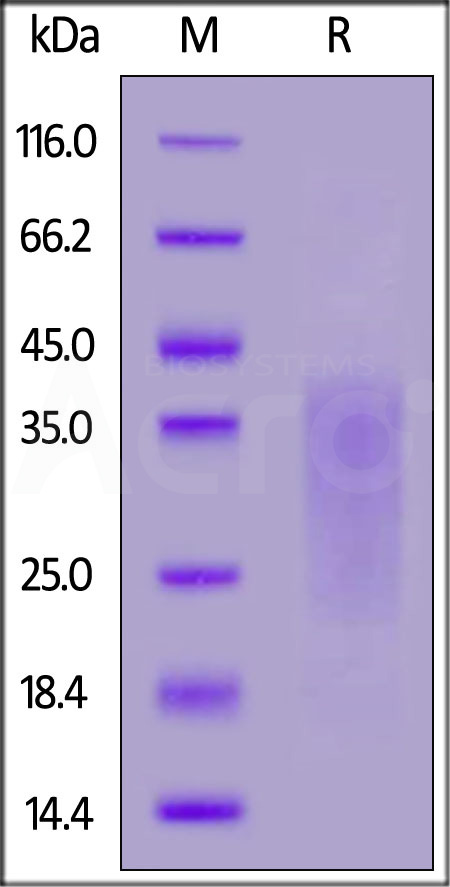 Human Activin RIIB, His Tag (Cat. No. ACB-H5226) SDS-PAGE gel