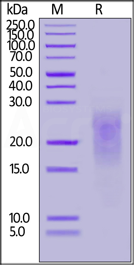 Human ALK-7, His Tag (Cat. No. AL7-H52H5) SDS-PAGE gel