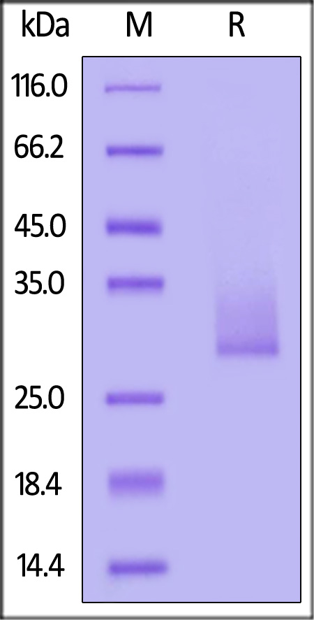 Human Angiopoietin-like 3, His Tag (Cat. No. AN3-H5226) SDS-PAGE gel