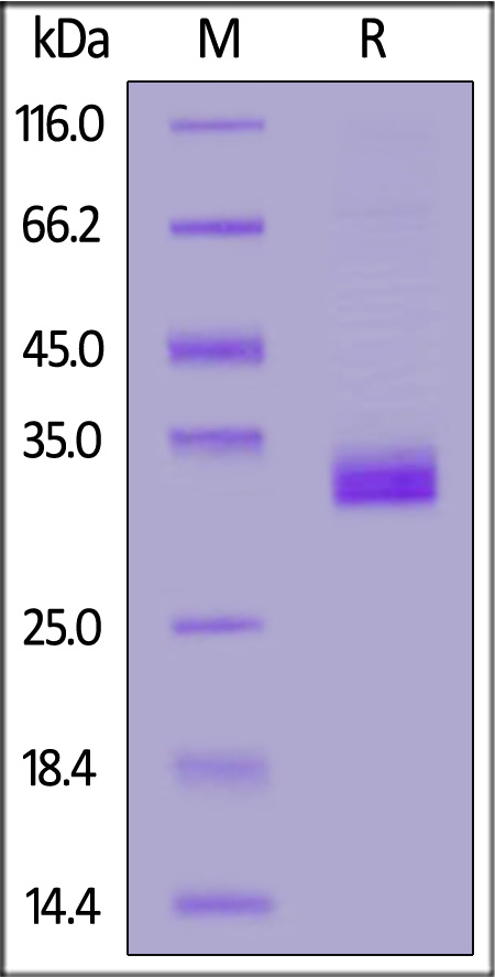 Human Angiopoietin-like 4 (166-406), His Tag (Cat. No. AN4-H5243) SDS-PAGE gel