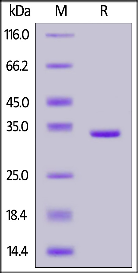 Human ANXA5, Tag Free (Cat. No. AN5-H5118) SDS-PAGE gel