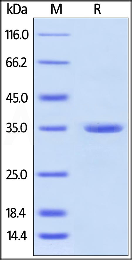 Human Annexin A5, His Tag (Cat. No. AN5-H5123) SDS-PAGE gel