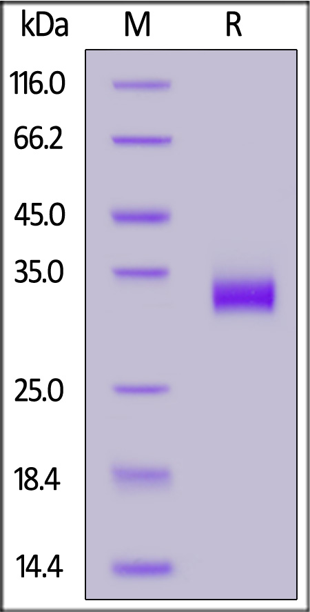 Human ANGPTL7, His Tag (Cat. No. AN7-H52H5) SDS-PAGE gel