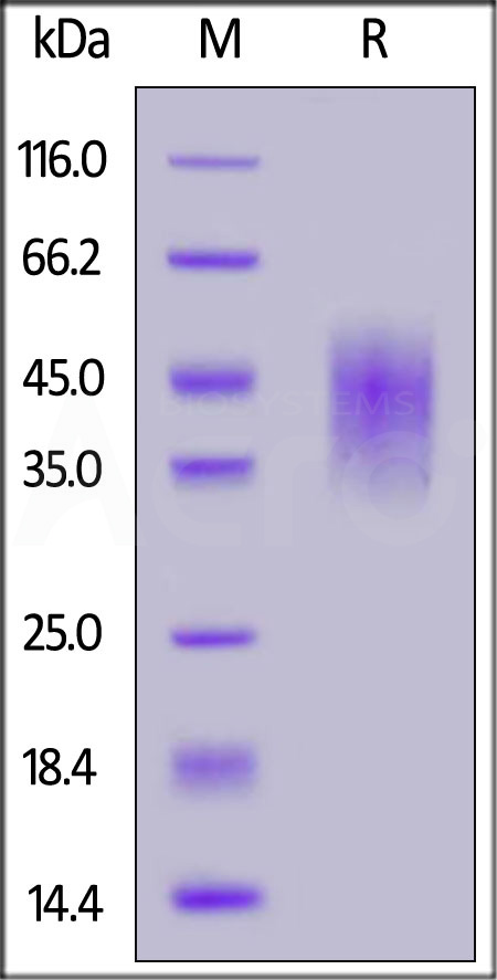 Human B7-H5, His Tag (Cat. No. B75-H52H0) SDS-PAGE gel