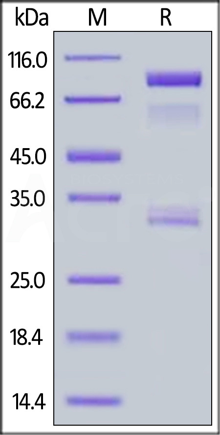 Human BACE-1, Fc Tag (Cat. No. BA1-H5261) SDS-PAGE gel