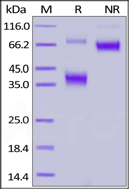 FITC-Labeled Human BCMA, Fc Tag (Cat. No. BCA-HF254) SDS-PAGE gel
