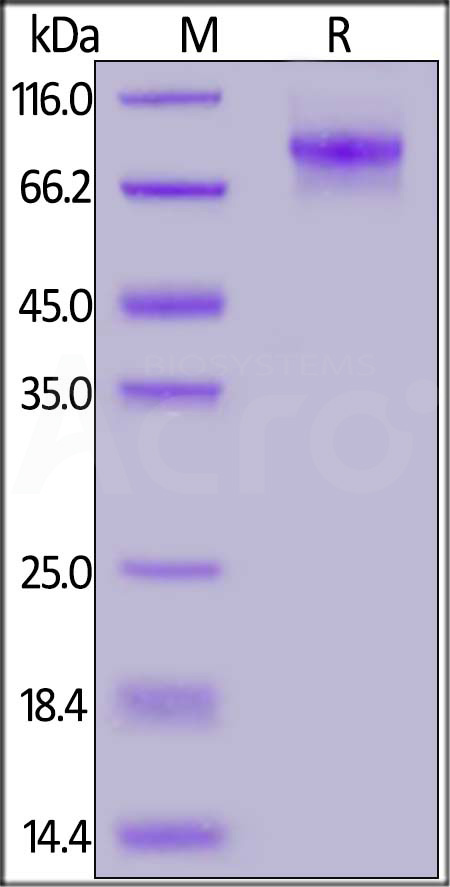 Human C1q R1, His Tag (Cat. No. C11-H5228) SDS-PAGE gel