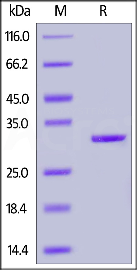 Human CA2, His Tag (Cat. No. CA2-H5228) SDS-PAGE gel