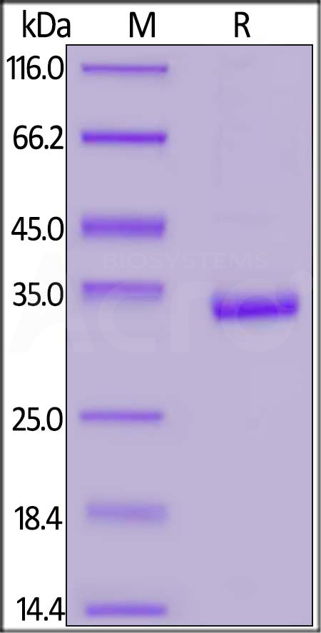 Human Carbonic Anhydrase IX (138-414), His Tag (Cat. No. CA9-H5220) SDS-PAGE gel