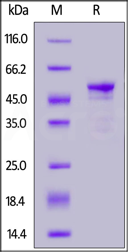 Human Carbonic Anhydrase IX (38-414), His Tag (Cat. No. CA9-H5226) SDS-PAGE gel