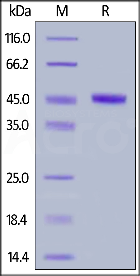 Human CBLB, His Tag (Cat. No. CBB-H5148) SDS-PAGE gel