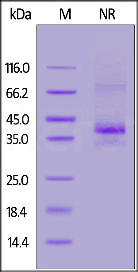 Human CCR5, Flag,His Tag (Cat. No. CC5-H52D1) SDS-PAGE gel