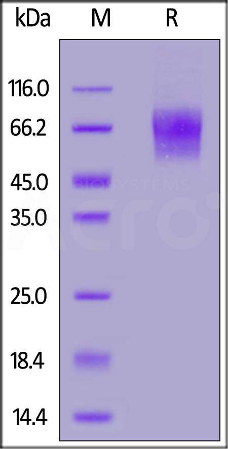 Human CD30, His Tag (Cat. No. CD0-H5229) SDS-PAGE gel