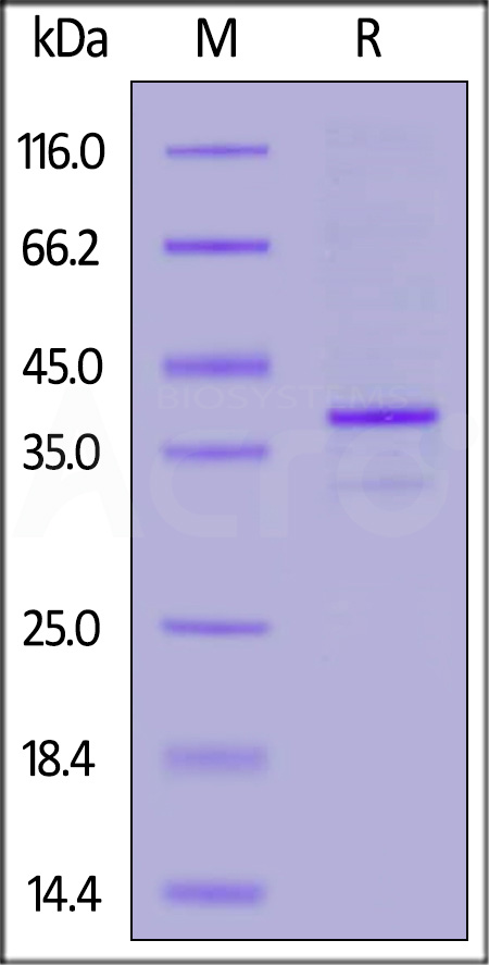 Human CD20 Full Length, His Tag (HEK293) (SPR verified) (Cat. No. CD0-H52H3) SDS-PAGE gel