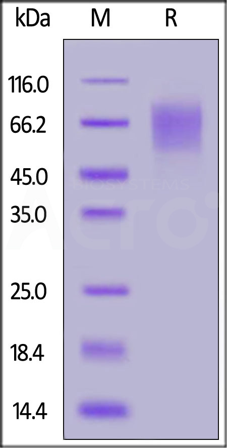 Biotinylated Human CD30 / TNFRSF8, His Tag (Cat. No. CD0-H82E6) SDS-PAGE gel