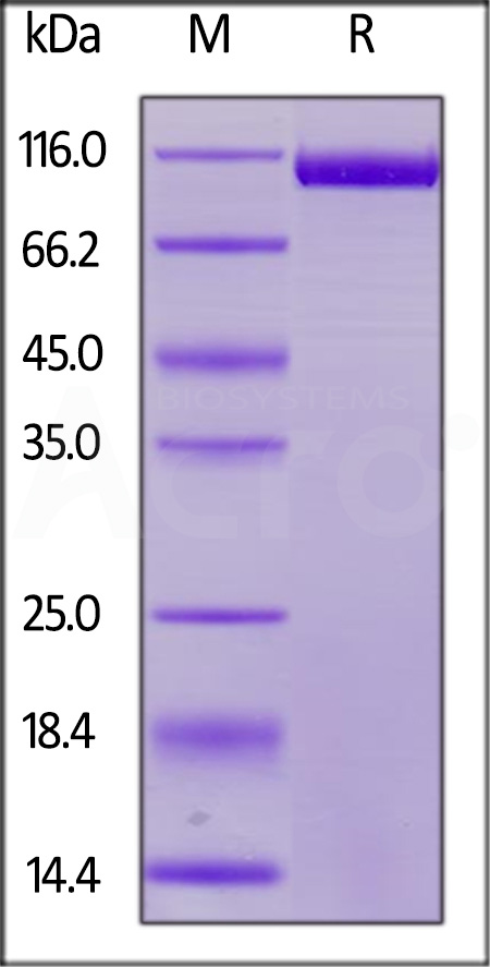 Human Siglec-2, His Tag (Cat. No. CD2-H52H8) SDS-PAGE gel