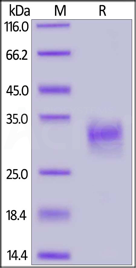 human CD74, His Tag (Cat. No. CD4-H524c) SDS-PAGE gel
