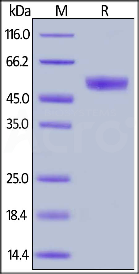 Human CD94, Mouse IgG2a Fc Tag (Cat. No. CD4-H5253) SDS-PAGE gel