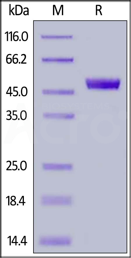 FITC-Labeled Human CD4, His Tag (Cat. No. CD4-HF2H7) SDS-PAGE gel