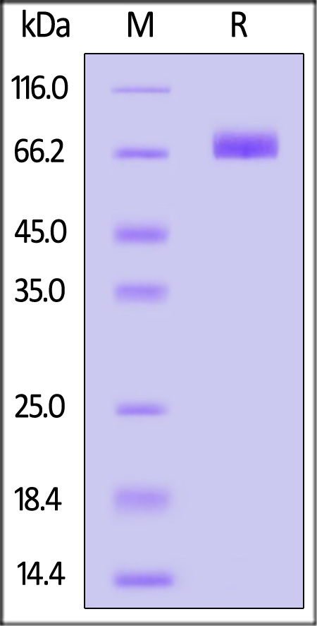 Human CD36, His Tag (Cat. No. CD6-H5221) SDS-PAGE gel