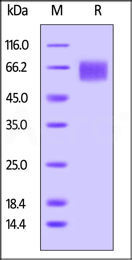 Biotinylated Human IL-6 R alpha, His Tag (Cat. No. CD6-H82E8) SDS-PAGE gel