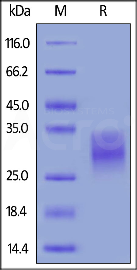 Human EMMPRIN, His Tag (Cat. No. CD7-H5222) SDS-PAGE gel