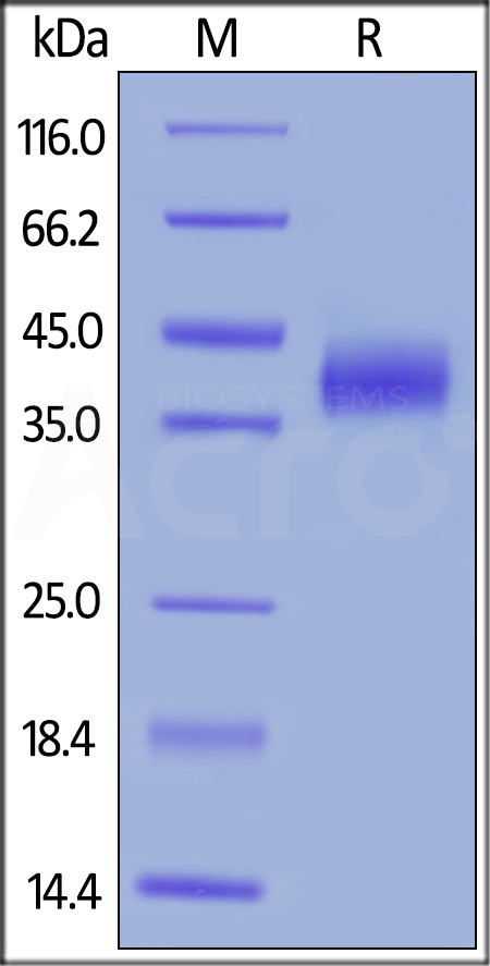 Human CD38, His Tag (Cat. No. CD8-H5224) SDS-PAGE gel
