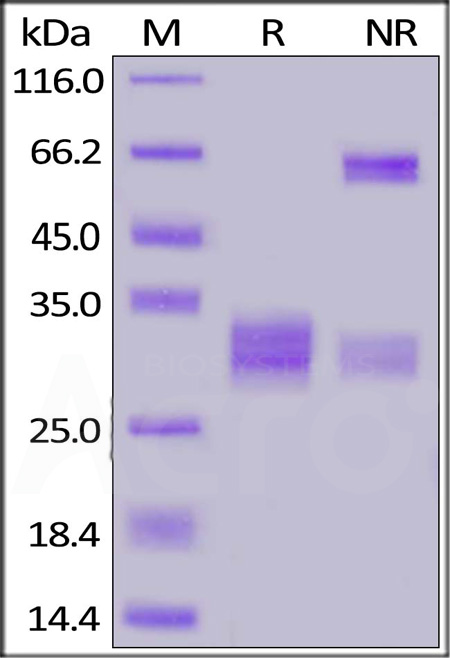 Human CD8A&CD8B Heterodimer Protein, His Tag&Tag Free (Cat. No. CDA-H52W5) SDS-PAGE gel