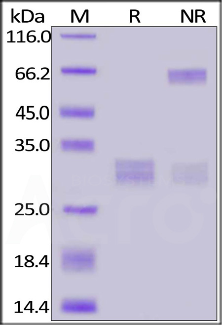 FITC-Labeled Human CD8A&CD8B Heterodimer Protein, His Tag&Tag Free (Cat. No. CDA-HF2W4) SDS-PAGE gel
