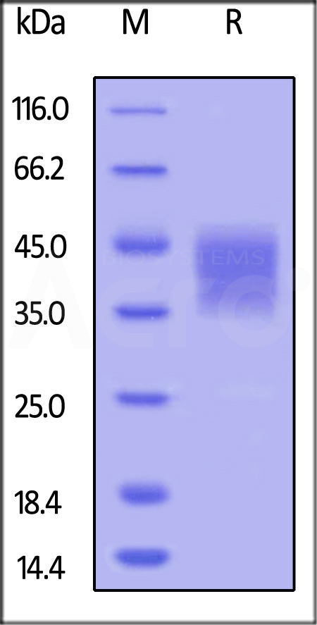 Human CD16b (NA1) (SPR verified) (Cat. No. CDB-H5227) SDS-PAGE gel