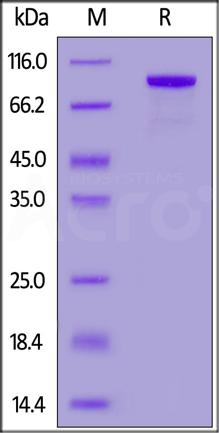 Human CD32b Protein, HSA,His Tag (Cat. No. CDB-H52S9) SDS-PAGE gel