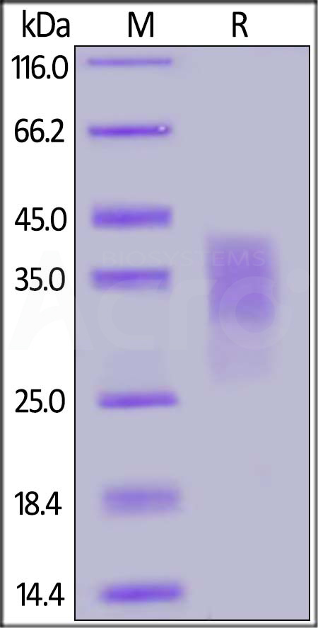 Human CD300c, His Tag (Cat. No. CDC-H5224) SDS-PAGE gel
