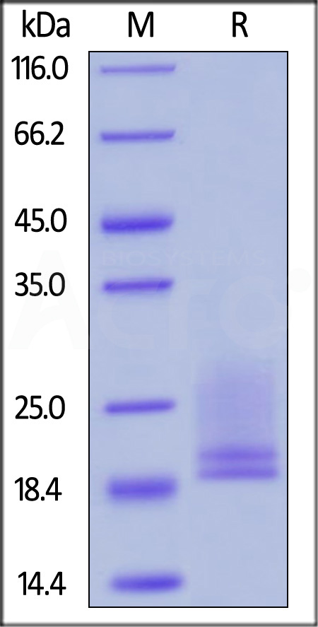 Human CD3E & CD3D, His Tag (Cat. No. CDD-H52W4) SDS-PAGE gel