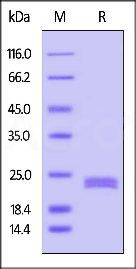Human CD40 Ligand, His Tag (Cat. No. CDL-H5248) SDS-PAGE gel
