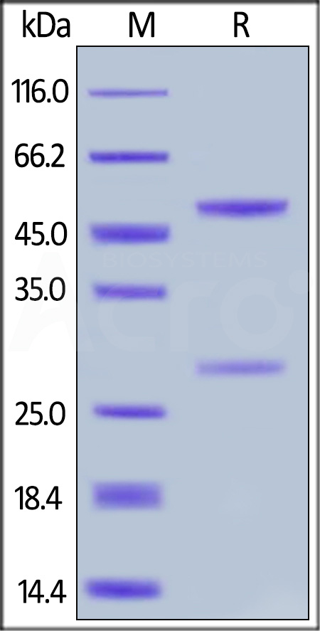 Anti-Cetuximab Antibodies (recommended for ADA assay) (Cat. No. CEB-Y27) SDS-PAGE gel