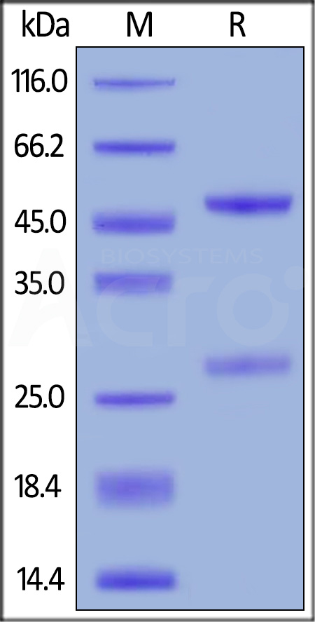Anti-Cetuximab Antibodies (Cat. No. CEB-Y28) SDS-PAGE gel