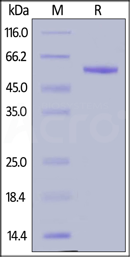 Human Complement Factor D, Fc Tag (Cat. No. CFD-H5256) SDS-PAGE gel