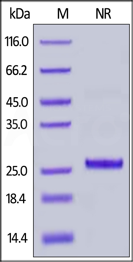 Rhesus macaque / Cynomolgus Complement Factor D, His Tag (Cat. No. CFD-R52H3) SDS-PAGE gel