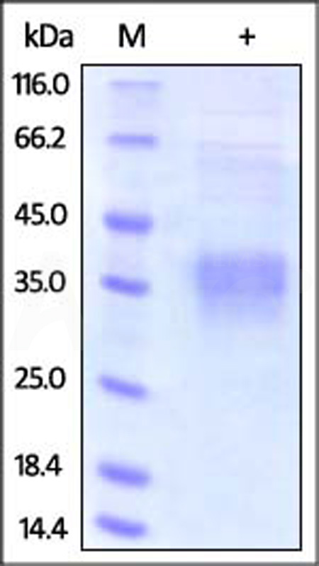 Human Clusterin, His Tag (Cat. No. CLU-H5227) SDS-PAGE gel
