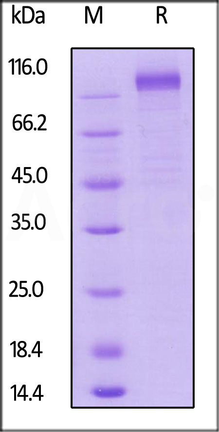 HCMV Glycoprotein B (gB), His Tag (Cat. No. CMB-V52H3) SDS-PAGE gel