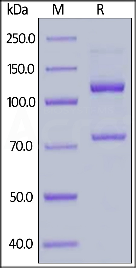Human Complement C5 (w917s), His Tag (Cat. No. CO5-H52H7) SDS-PAGE gel