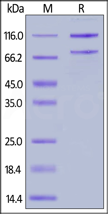 Rat Complement C5, His Tag (Cat. No. CO5-R52H5) SDS-PAGE gel