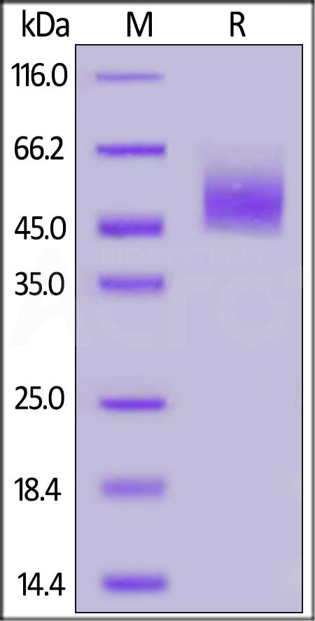 Human CRTAM, His Tag (Cat. No. CRM-H52H3) SDS-PAGE gel