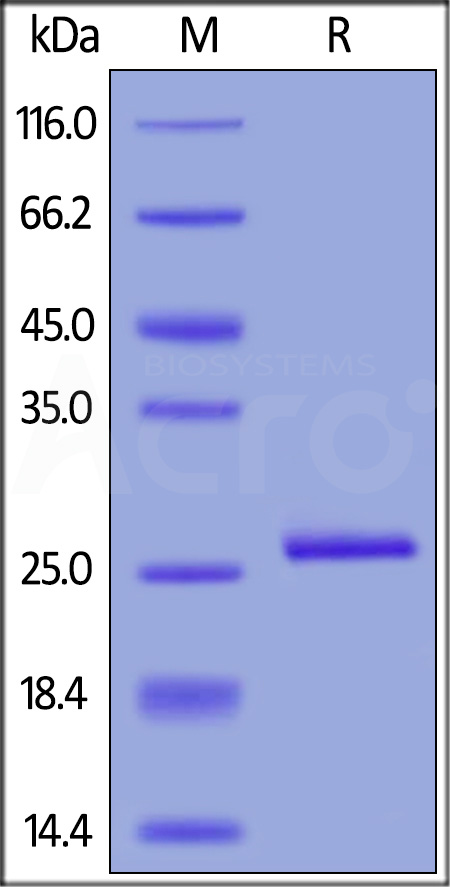 Human C-Reactive Protein, His Tag (Cat. No. CRP-H5226) SDS-PAGE gel
