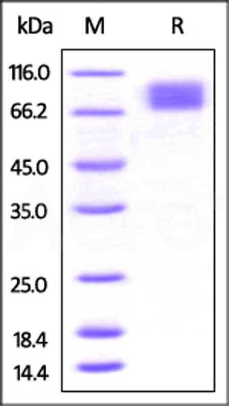 Mouse M-CSF R, His Tag (Cat. No. CSR-M52E7) SDS-PAGE gel