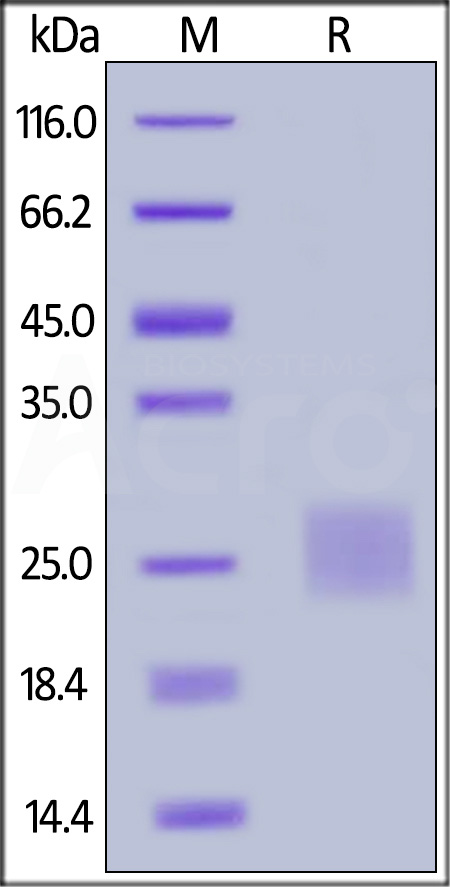 Human CTLA-4, Strep Tag (Cat. No. CT4-H5284) SDS-PAGE gel
