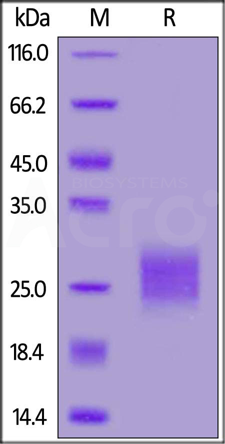 Human CTLA-4, His Tag, active dimer (Cat. No. CT4-H52H9) SDS-PAGE gel