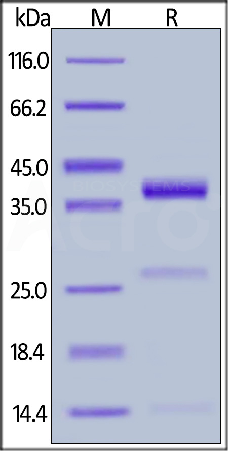 Human Cathepsin S, His Tag (Cat. No. CTS-H5224) SDS-PAGE gel