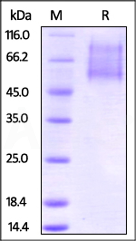 Biotinylated Human CX3CL1, His Tag (Cat. No. CX1-H8221) SDS-PAGE gel