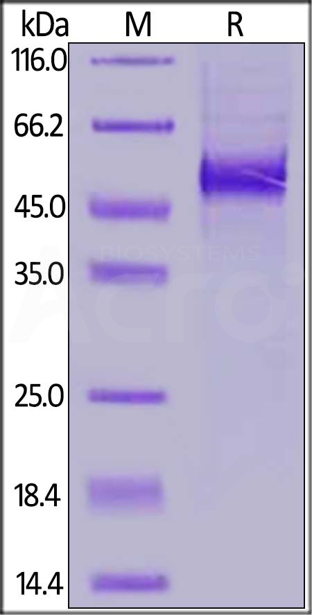 Human DLL3, His Tag (Cat. No. DL3-H52H4) SDS-PAGE gel